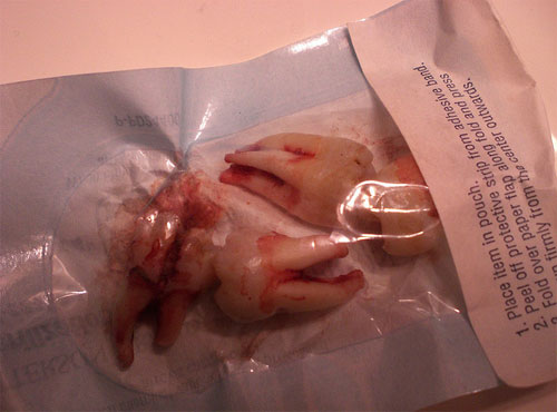 extracted wisdom teeth in bag