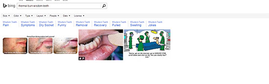 thermal burn wisdom teeth bing - The Search Engine Battle: Are you Paying Attention?