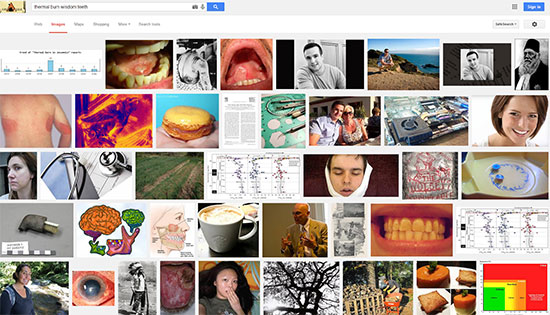 thermal burn wisdom teeth google - The Search Engine Battle: Are you Paying Attention?