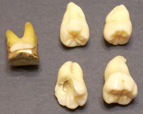 wisdom teeth dental gold