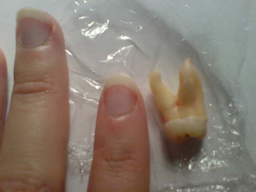 wisdom tooth next to fingers